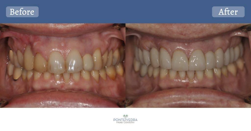Full Upper Rehab w/o Denture