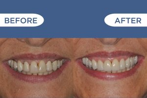 Hardy Dental Bridge Proceedure before and after photos