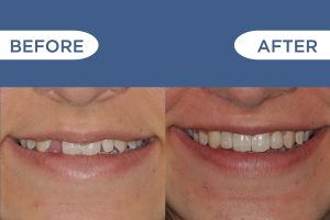 Patient Shaya before and after dental bridges photo